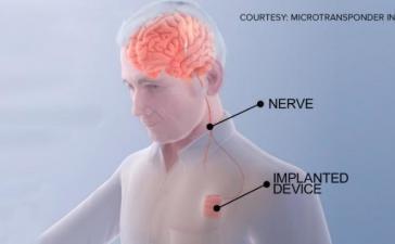 «Мозговой кардиостимулятор» может помочь пациентам быстрее оправиться от инсульта